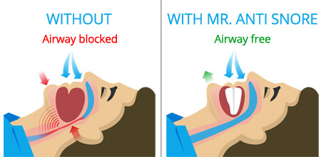 how-does-mr-anti-snore-work